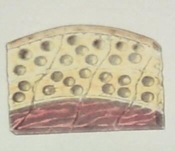 가슴성형 - 지방주입 받은 환자의 보형물 수술