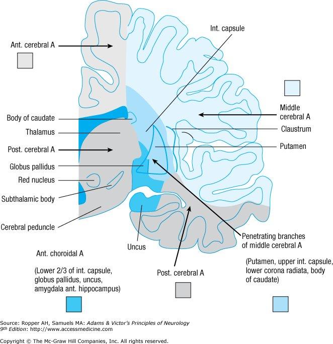 신상엽 재활의학과 :: Cerebrovascular Diseases