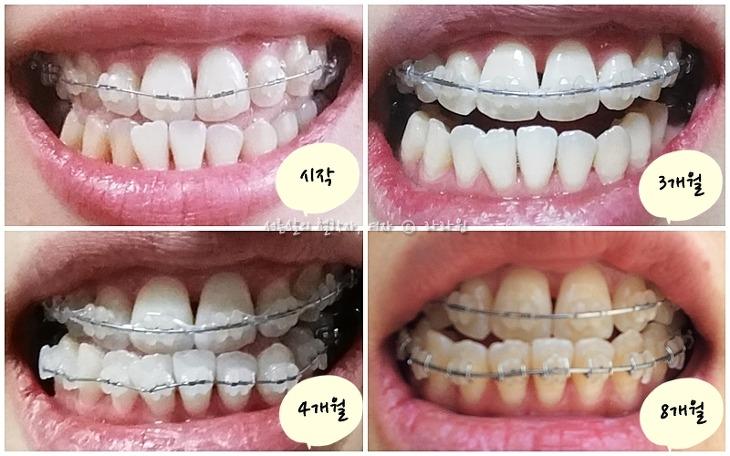 치아교정 10개월, 치아교정 10달